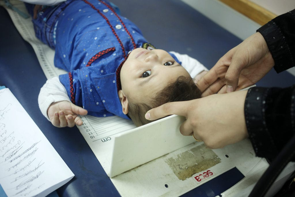 a toddler lies on an examination table.